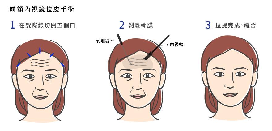 內視鏡拉皮透過藏在頭髮內的五個小傷口來做拉皮手術