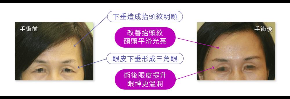 內視鏡拉皮手術案例:下垂造成抬頭紋明顯,眼皮下垂。術後改善抬頭紋、眼皮提升